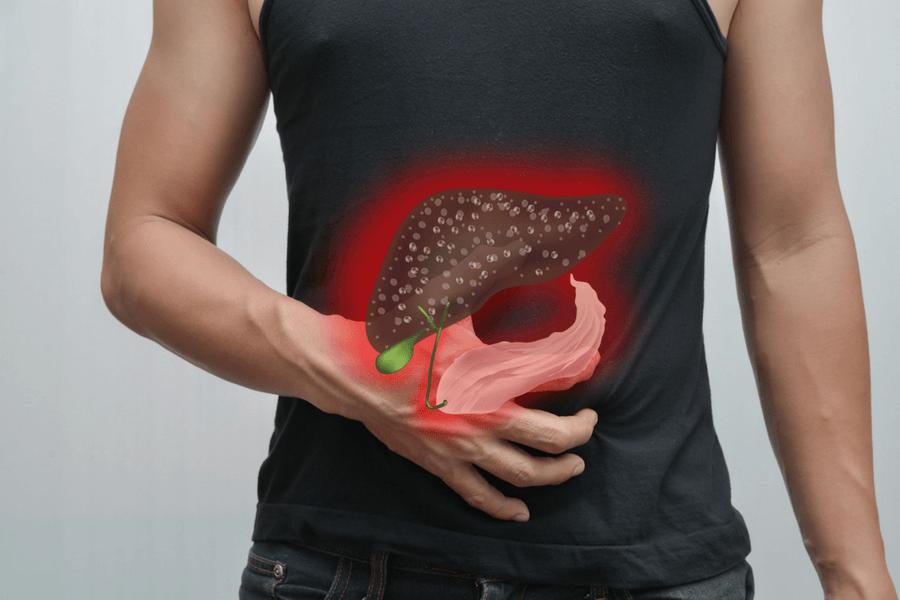 Enfermedades hepaticas-causas del GGT alto