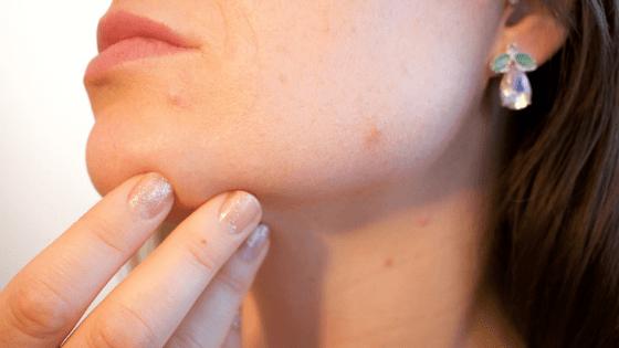 el colageno reduce el acne